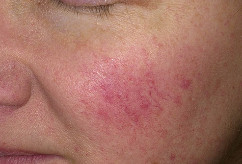 Amlopidine and facial swelling